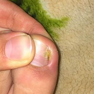 Mittel Gegen Gras Zwischen Steinen : nach eingewachsenen nagel wieder eingewachsen und nun ~ Michelbontemps.com Haus und Dekorationen