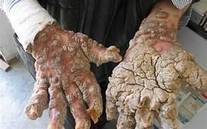 Бородавки папилломы на руках лечение