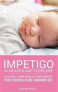 Height And Weight Chart For Babies Calculator Impetigo In Babies Causes Symptoms And Treatment