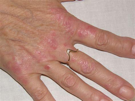 Biologika - Behandlung und Therapie Schuppenflechte (