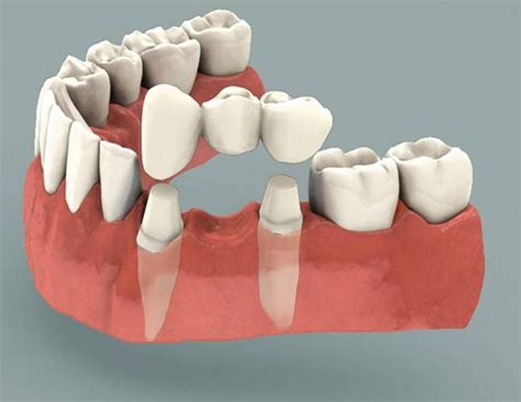 dental bridge work dental implants    dentists