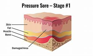 Skin  U0026 Pressure Sores After Spinal Cord Injury