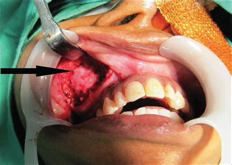 Infected Dentigerous Cyst Of Maxillary Sinus Arising From