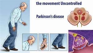 Could Low-fat Dairy Increase the Risk of Parkinson's ...