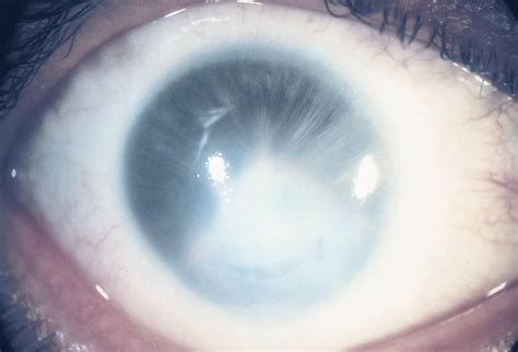 peters anomaly american academy  ophthalmology