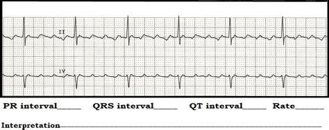 float nurse ecg rhythm strip quiz  interval measurements