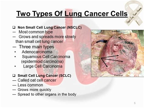 Lung Cancer By, Nazneen Chougle Neha Bhatkal Nilekha
