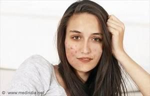mother tincture homeopathic medicine jaborandi