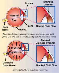 What causes glaucoma? Glaucoma