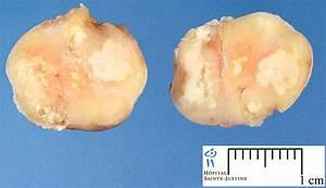 Necrotizing Adenitis - Humpath Com
