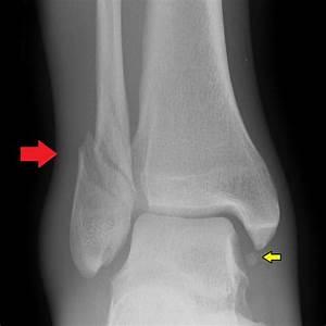 Oblique Fracture Tibia images