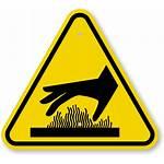 Hazard Burn Symbol Surface Warning Signs Sign