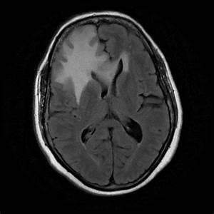 Planum sphenoidale meningioma | Image | Radiopaedia.org