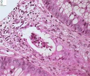 Adenoviral Colitis - Humpath Com