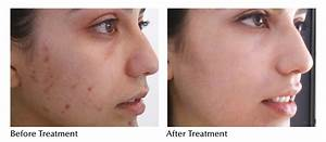 glycolic peel for acne