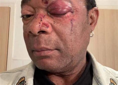Le chanteur Congolais Djuna Djanana sauvagement agressé en France - Kribios Universal