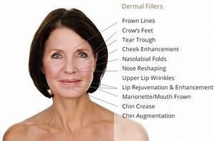 Dermal Fillers For Facial Lines And Liquid Face Lift Using
