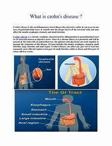 Crohn U2019s Disease Causes  Symptoms And Treatment
