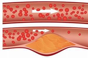 cauze colesterol