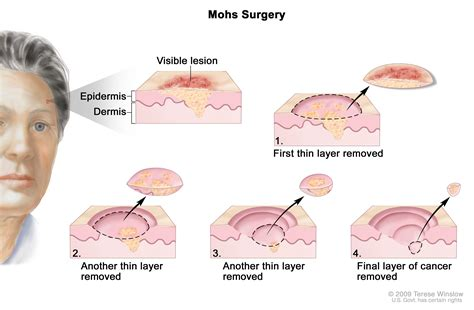 Skin Cancer Treatment Pdqpatient Version National