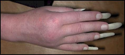 Reflex Sympathetic Dystrophy (rsd) Symptoms Treatment Rsd