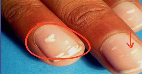 White Spots On Nail Beds by What Are The White Dots On My Nails