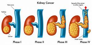 Kidney Cancer Symptoms Usually Occur Later Rather Than ...