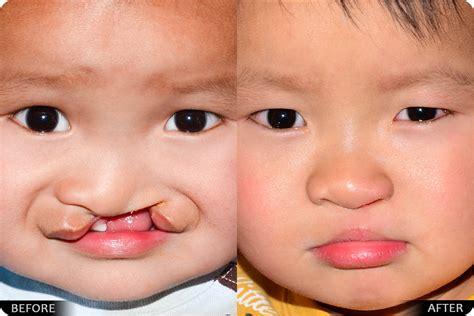 Cleft Lip And Palate Derek Steinbacher Md Dmd Facs