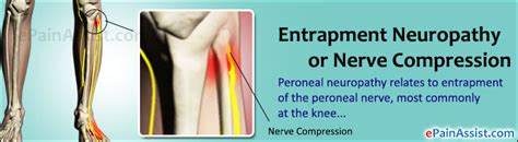Entrapment Neuropathy Treatment, Symptoms, Causes, Types. High School Student Signs. Large Vessel Signs Of Stroke. Stroke Patient Signs. Dance Signs Of Stroke. Wtf Zodiac Signs. Old Hotel Signs Of Stroke. Urdu Signs. Supergirl Signs
