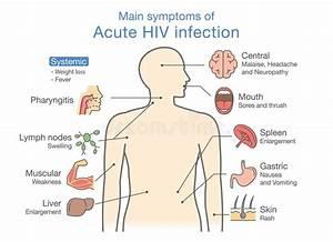 Main Symptom Of Acute Hiv Infection  Stock Vector