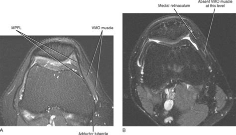 Imaging Of The Knee