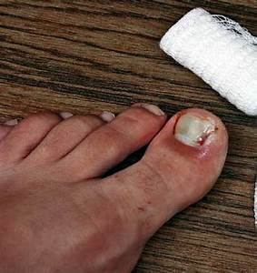 Nail Ingrown And Inflamed