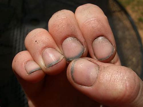 They Are Dirty As Nails #Pet #Peeves #Pet #Peeve ##40: #Dirty #Finger #Nails!