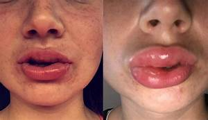 This Woman Had An Intense Allergic Reaction To A Teeth ...