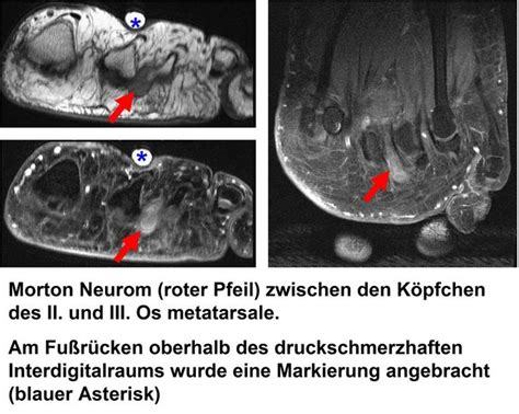 universitaetsklinikum heidelberg morton neurom morton