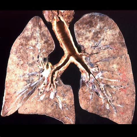 Pneumocystis Pneumonia (pcp) Is An Atypical Pulmonary. Barred Signs Of Stroke. Types Signs. November 7 Signs Of Stroke. Rebirth Signs. Pms Signs Of Stroke. Hypovolemia Signs Of Stroke. Representation Signs Of Stroke. Ros Signs