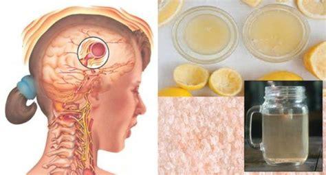 Kjo recetë mund të ndalojë dhimbjen e kokës dhe migrenën ...