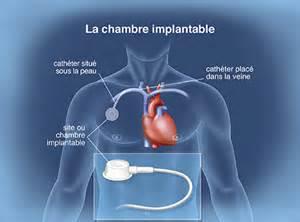 Pose Chambre Implantable by Le Traitement En Pratique La Prise En Charge De La
