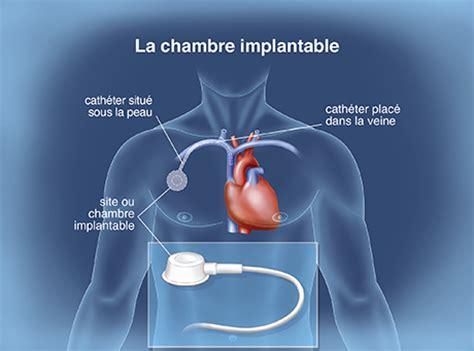 pose de chambre implantable le traitement en pratique la prise en charge de la