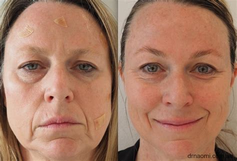 Collagen before and After 8 - Get Collagen Supplements