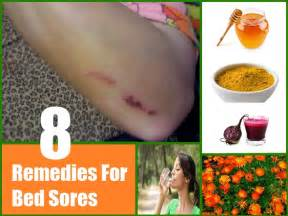 8 home remedies for bed sores natural treatments cure