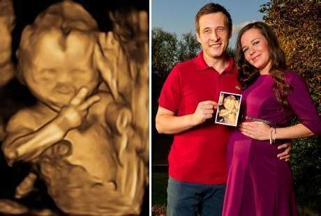 Janin 5 Bulan Kembar Foto Usg Unik Bayi Beri Salam Jempol Jadiberita Com