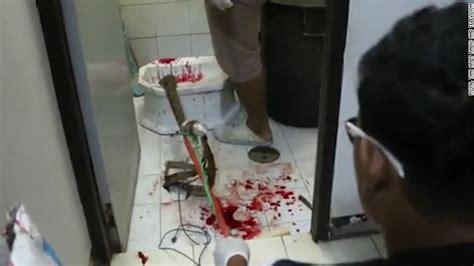 sang dans la toilette mordu par un python au p 233 nis 2tout2rien