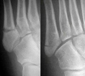 Fractures Of The 5th Metatarsal Bone