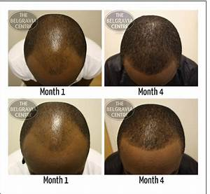 Will Thinning Hair On Temples Grow Back After Shaving Head