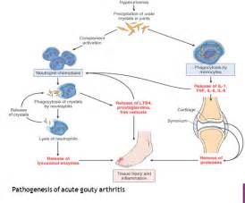 Pathogenesis of AIDS and Replication of HIV Images - Frompo  Rheumatoid Arthritis Acute gouty arthritis
