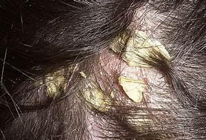 Эмалан лечение псориаза