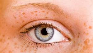 Les Yeux Les Plus Rare : changer la couleur de ses yeux non avoir les iris bleus ne rend pas plus attirant le plus ~ Nature-et-papiers.com Idées de Décoration