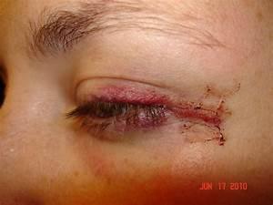 Permanent Makeup Eyeliner Gone Wrong - Makeup Vidalondon
