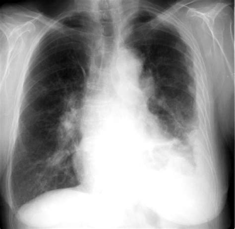 medical pictures info asbestos